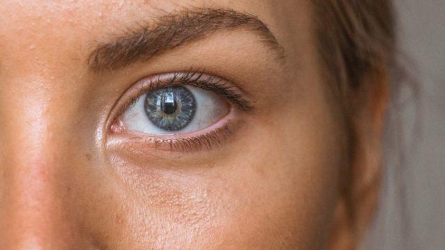 Atasi Masalah Jerawat Dengan Acne Serum sr12